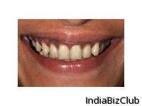 Depigmentation Cosmetic Dentistry
