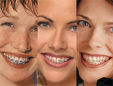 BRACES AT  Dr. Bothra�s Multispeciality Dental Clinic & Orthodontic Center